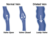 Spider Vein Disease Treatment at Marylad Heart
